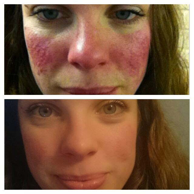 Fifty Shades Of Rosacea